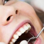 歯周病の治療方法と流れについて