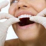 矯正歯科にかかる費用と歯科医院選びのポイント