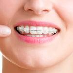 矯正歯科に保険はきかない?知っておきたい矯正にかかる費用